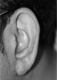 Ear keloid after treatment