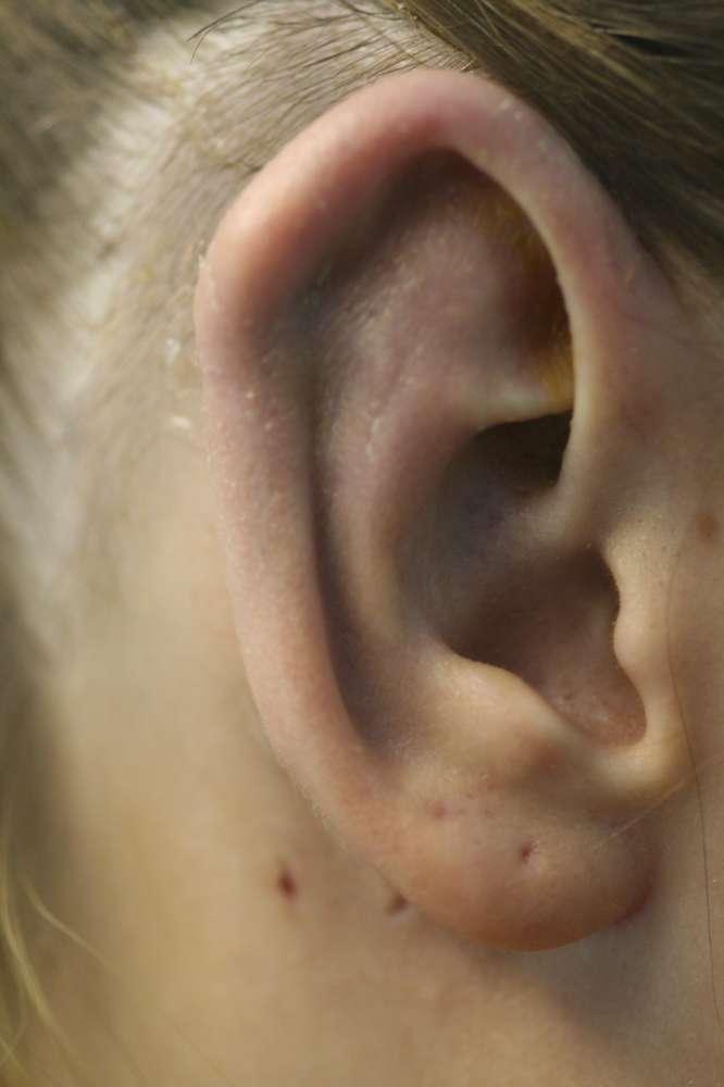 Correction of otoplasty gone wrong