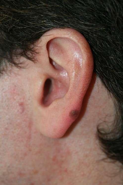 Melanoma ear.jpg
