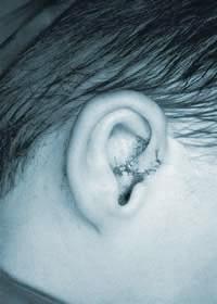 Ear deformity corrected