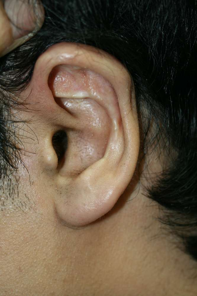 Bad ear pinning corrected