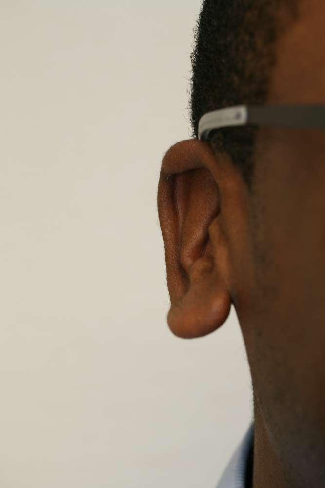 Stick out lobe