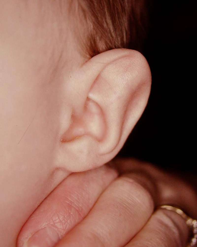Stahl's ear in a baby