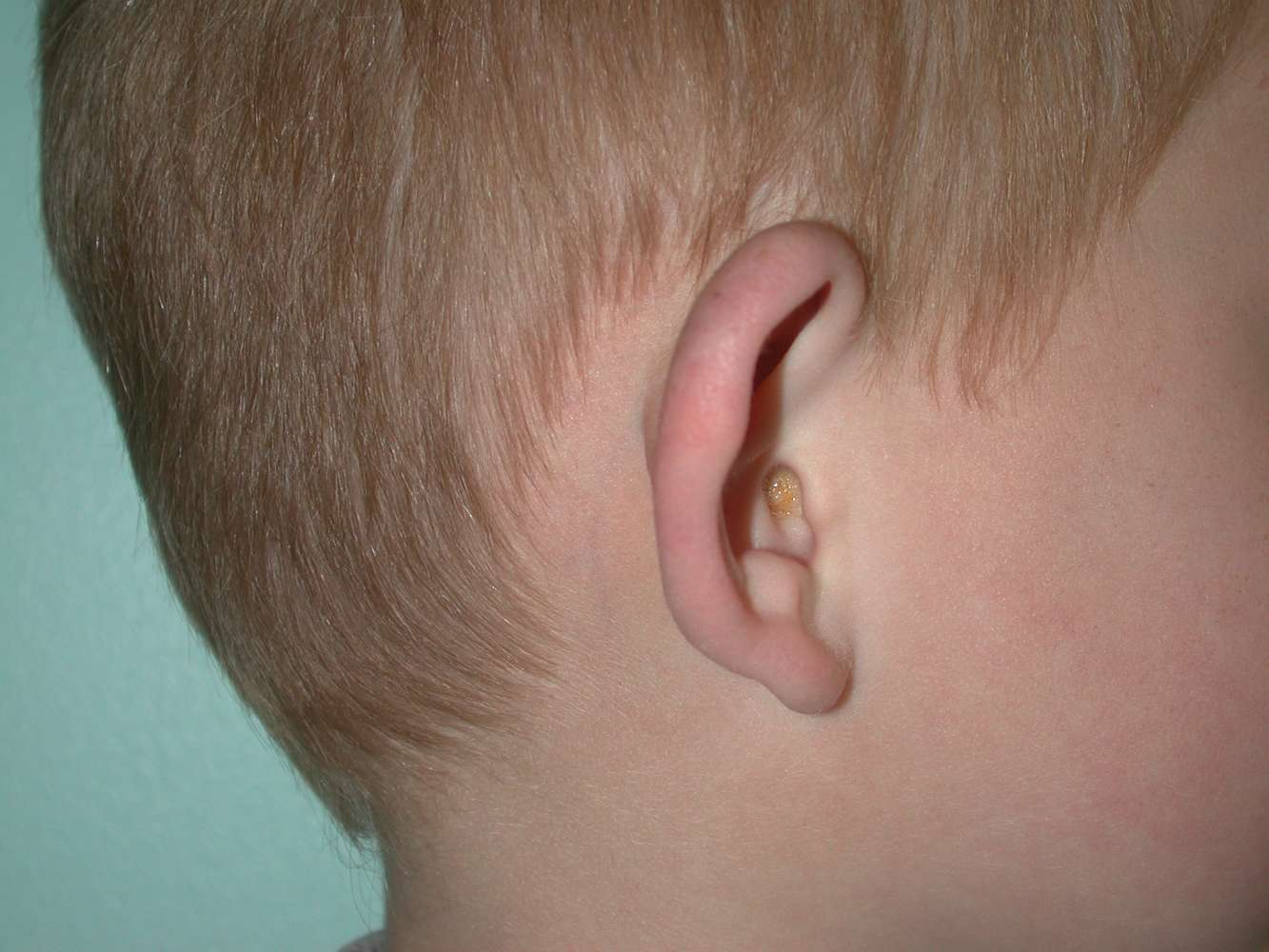 Ear correction in children