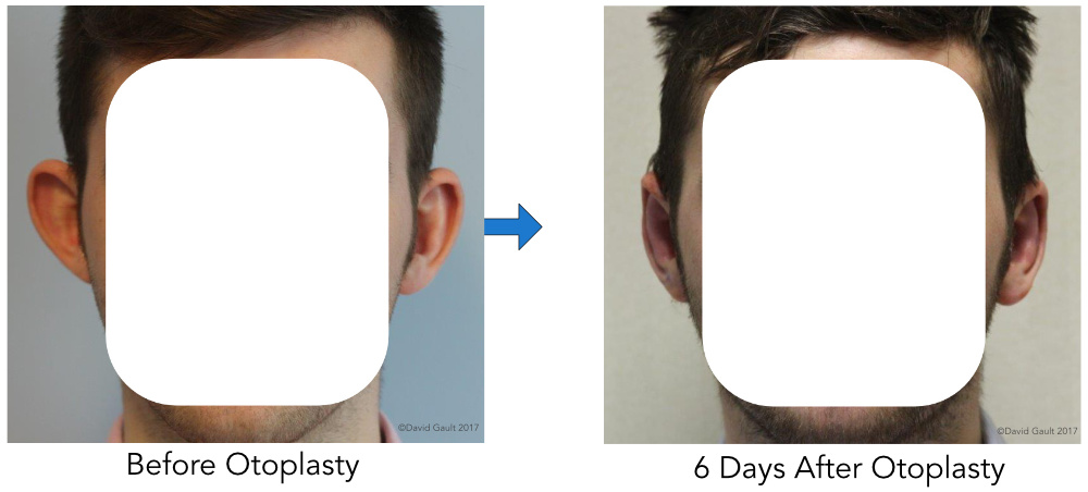 David_Gault_Otoplasty_Front_View_Results.jpg