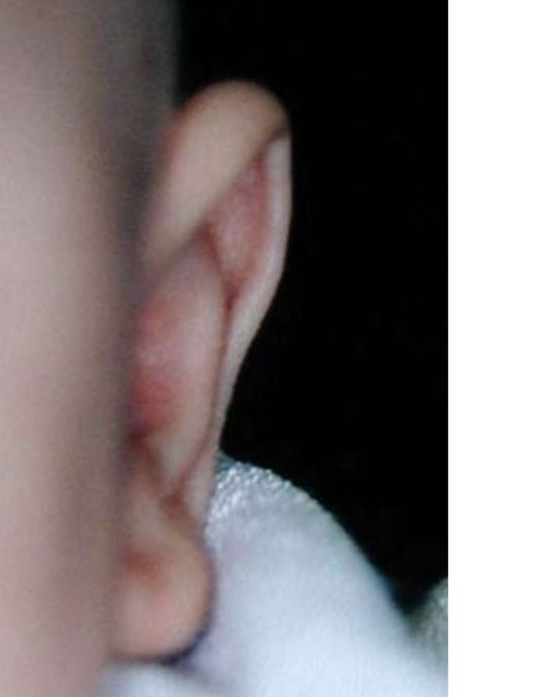 Ear correction with EarBuddies