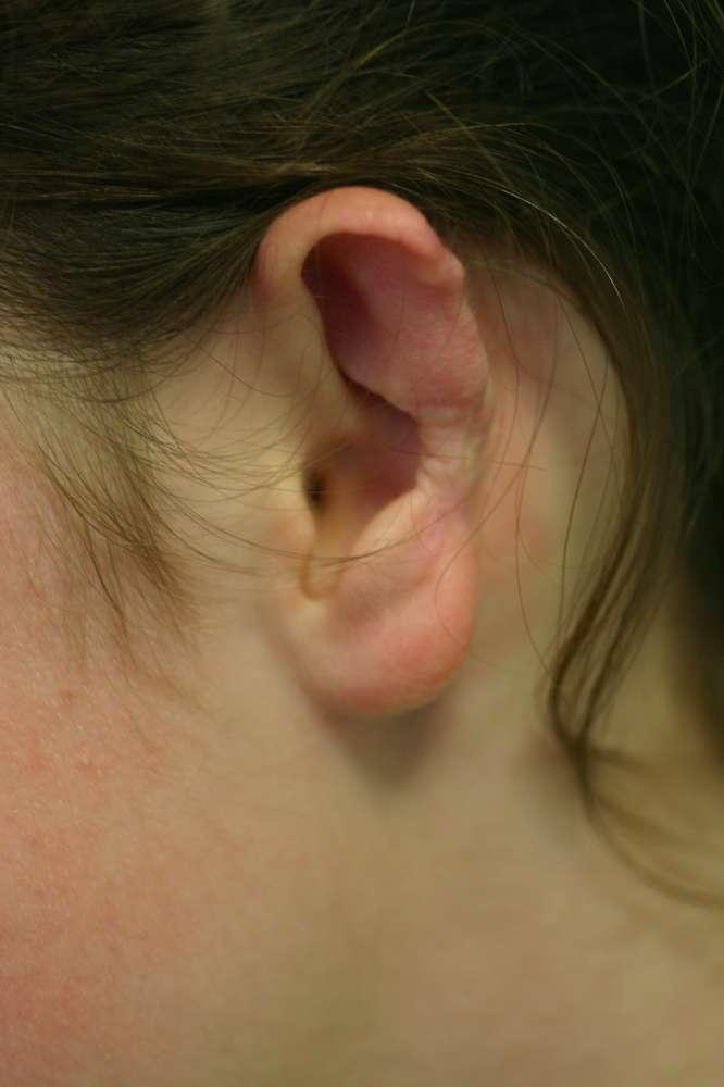 Ear rim missing