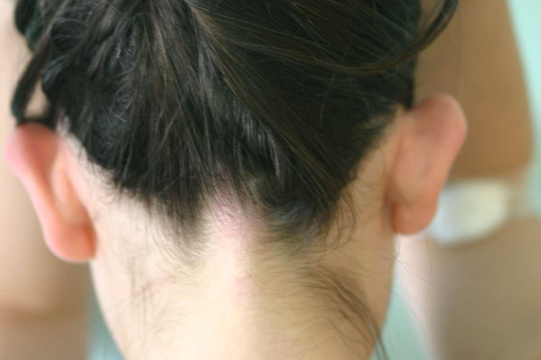 Jug ears before surgery