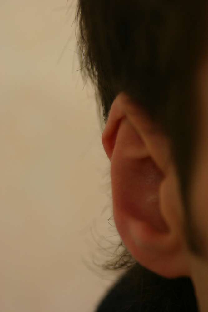 Ear rim correction for babies, children and adults